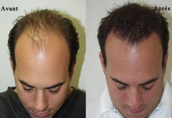 avant-apres-greffe-cheveux