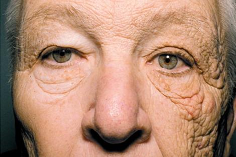 Vieillissement de la peau par le soleil. Effet de Dermathoheliosis sur une seule face du visage ayant été exposé journalièrement aux rayons du soleil. Photo Jennifer R.S. Gordon, M.D. y Joaquin C. Brieva, M.D. | NEJM