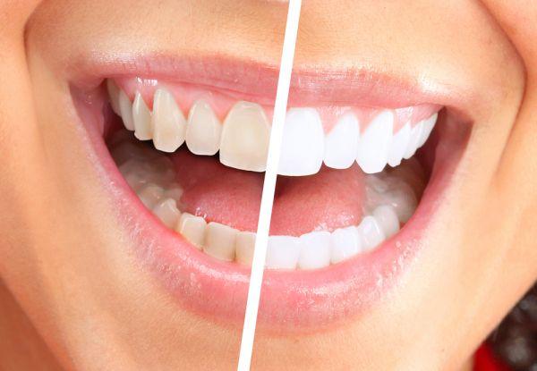 Le détartrage, indispensable pour les dents