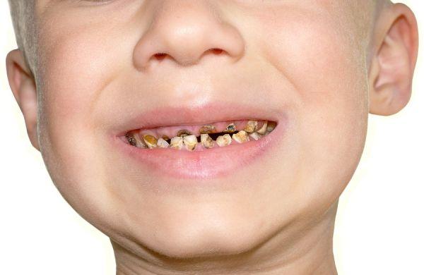 Pourquoi faut-il prendre soin de ses dents ?